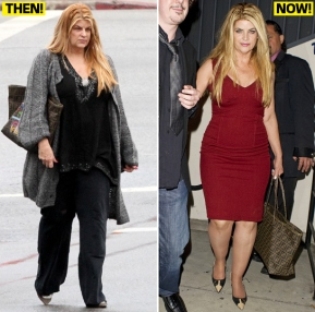Kirstie Alley beforeafter