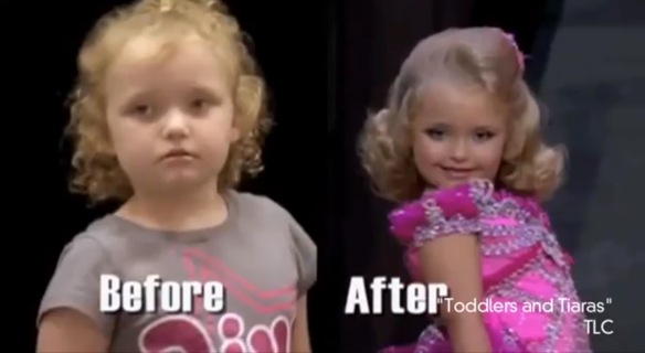 "Alana ""Honey Boo Boo"" Thompson.  From normal little girl to twenty-something-year-old look alike in TLC's Toddlers And Tiaras."